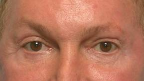 Lower Eyelid Retraction (The Madame Butterfly Procedure)